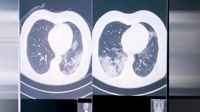 صورة كيف يساعد الذكاء الاصطناعي مرضى سرطان الرئة في عصر كورونا