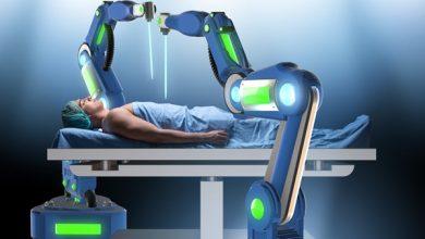 صورة الجراحة الروبوتية تُمكن الطبيب من إجراء العملية على أكمل صورة