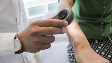 صورة الذكاء الاصطناعي يحدد سرطان الجلد بدقة