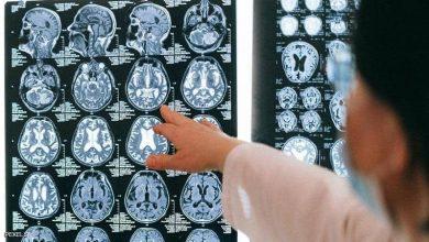 صورة بالذكاء الاصطناعي.. باحثون يحرزون تقدما ثوريا في تشخيص الخرف