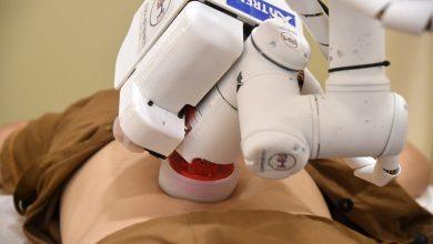"""صورة بالفيديو.. """"إيما"""" روبوت يمارس التدليك والعلاجات الصحية"""
